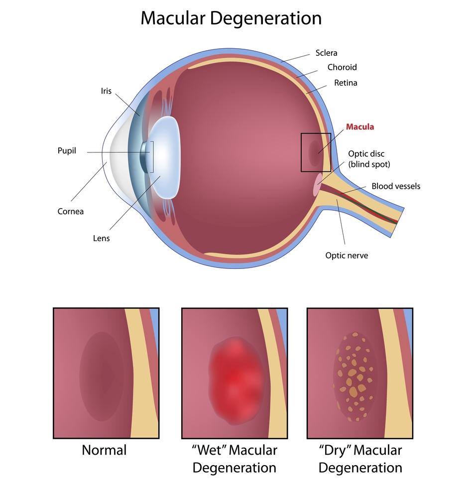 maculardegeneration(1)